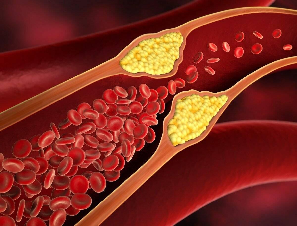 как избавиться от холестериновых бляшек на веке