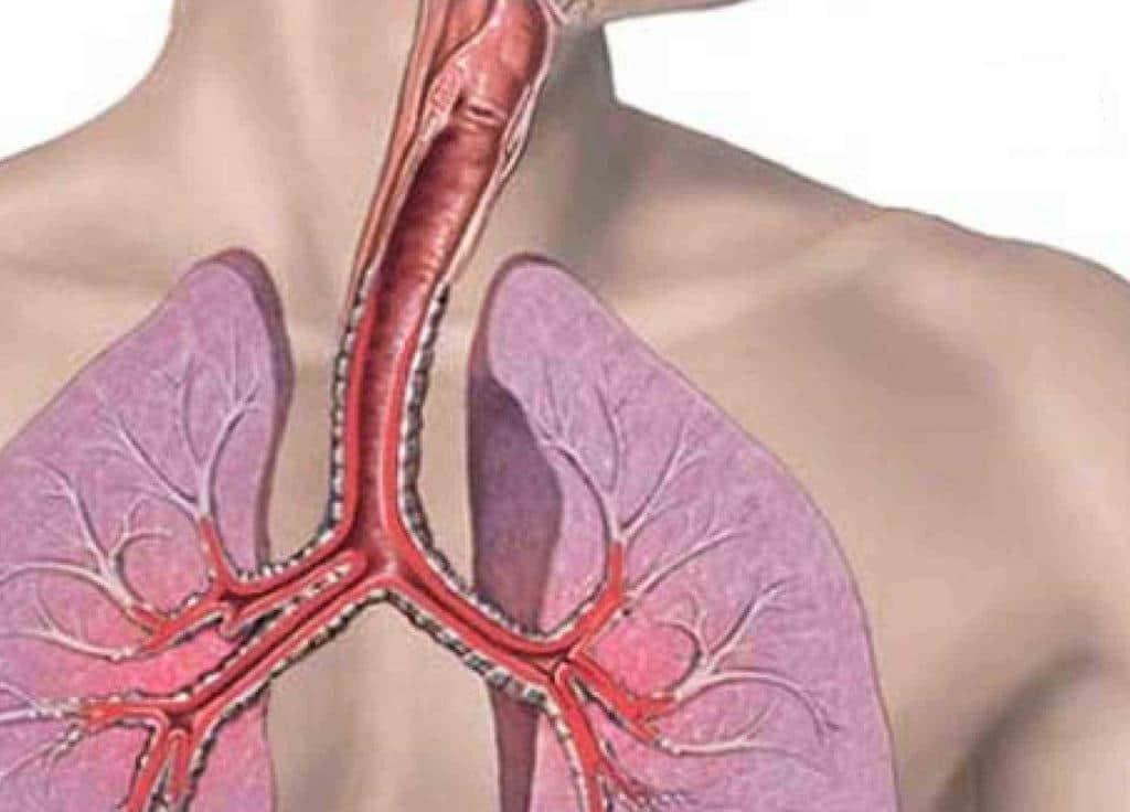 заболевания трахеи симптомы