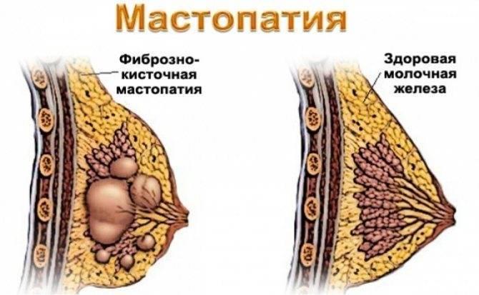 Боль и жжение в молочной железе причины симптомы лечение