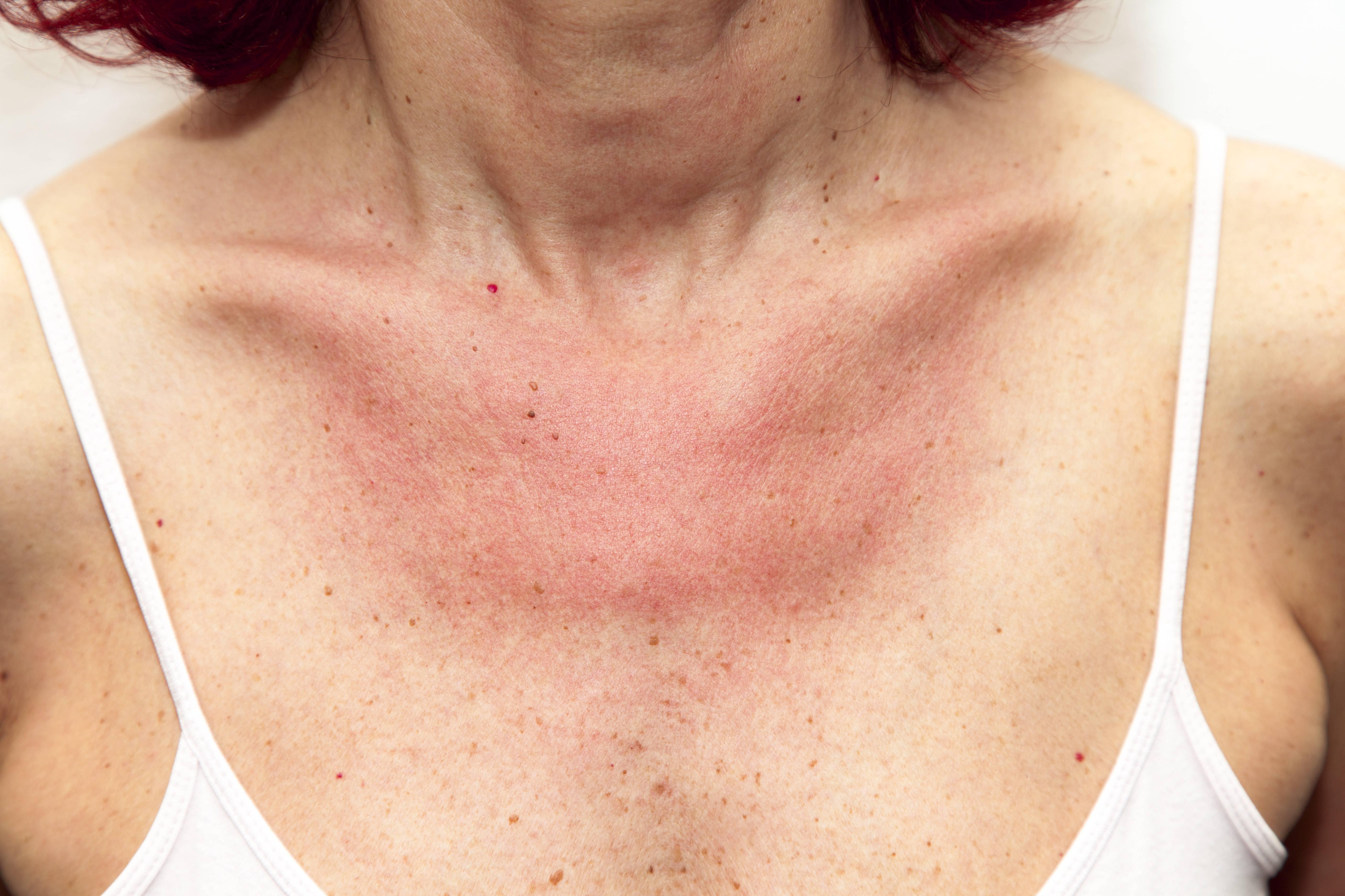 причины солнечного дерматита