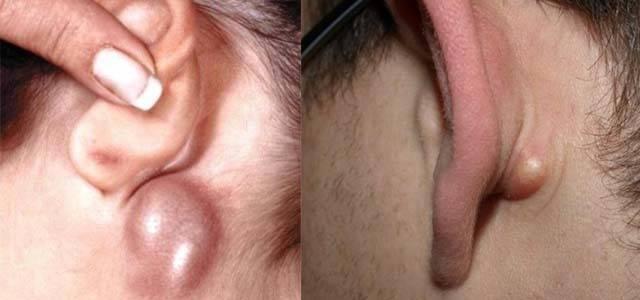 как лечить лимфоузлы за ухом