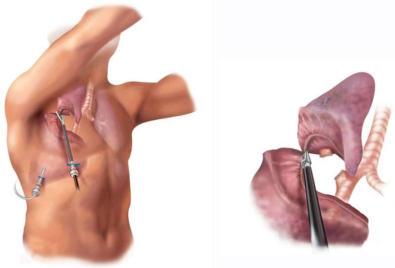 Рак трахеи: как выглядит, фото, лечение, прогноз