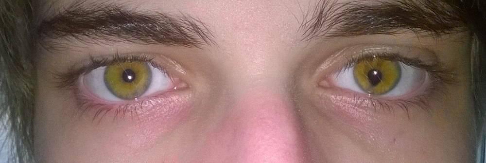 Что такое колобома глаза: есть ли опасность для зрения и нужно ли лечить