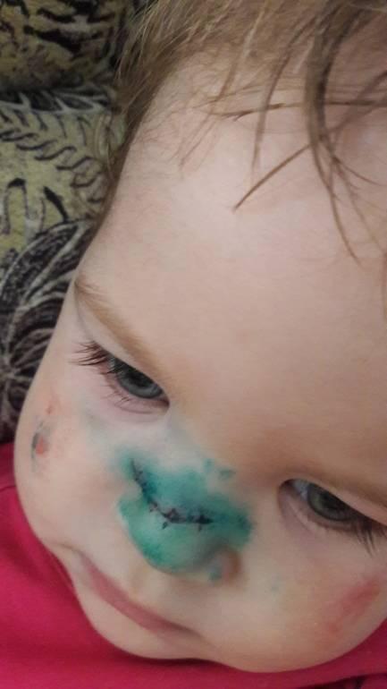 Травмы у детей: первая помощь. лицо и голова: 6 самых опасных мест