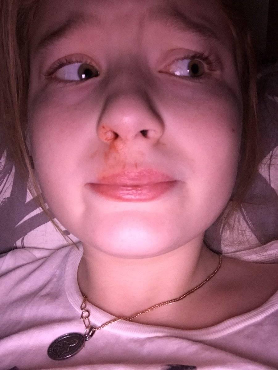 Сонник кровь носа. к чему снится кровь носа видеть во сне - сонник дома солнца