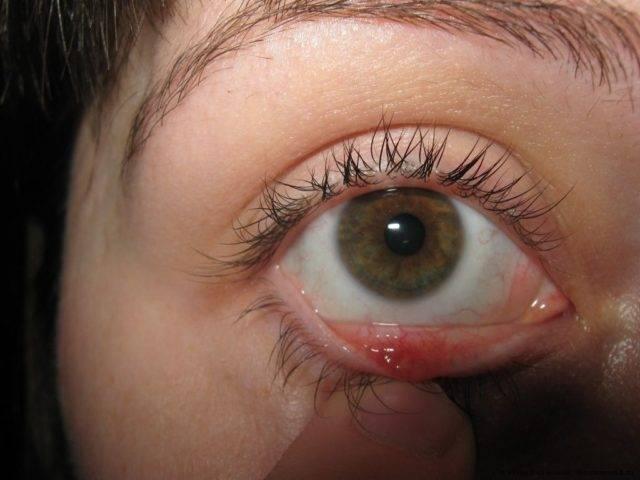 Болит глаз под верхним веком (при нажатии)