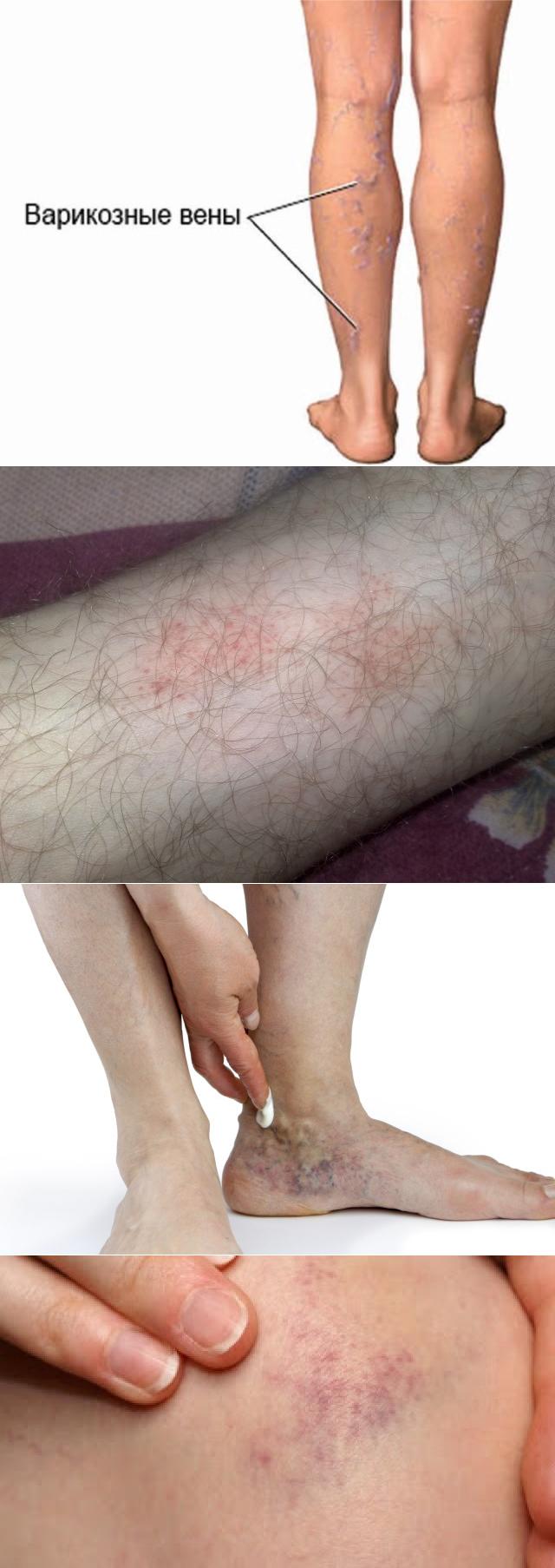 Народные средства для лечения варикозного дерматита