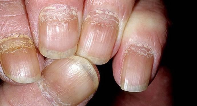 Псориаз ногтей на руках и ногах: причины, симптомы, лечение