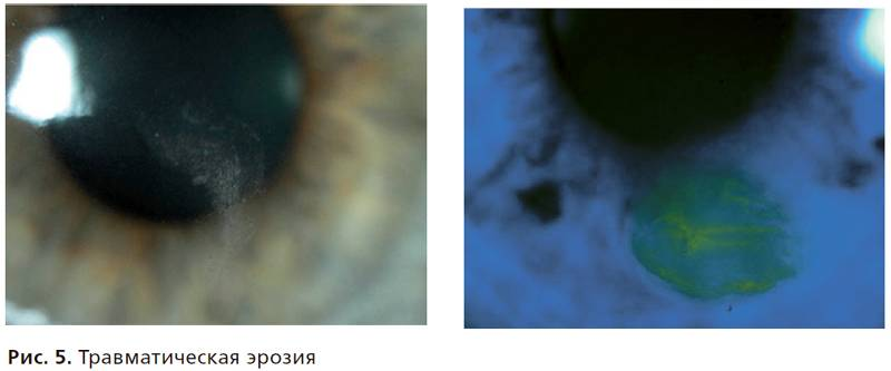 эрозия роговицы глаза лечение
