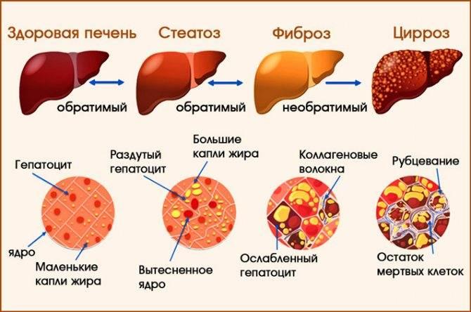 почему при циррозе печени растет живот