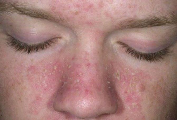 дегтярное мыло при себорейном дерматите