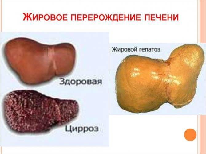 Жировой гепатоз печени лечение расторопшей