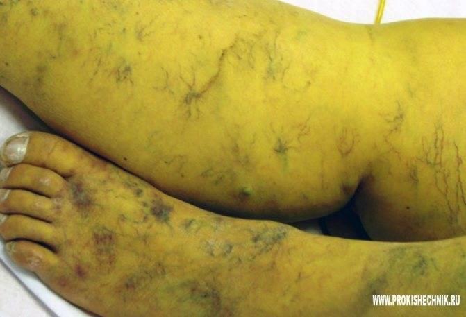 Отек ног при циррозе печени: причины, лечение и профилактика