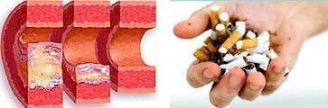 Препараты никотиновой кислоты против холестерина