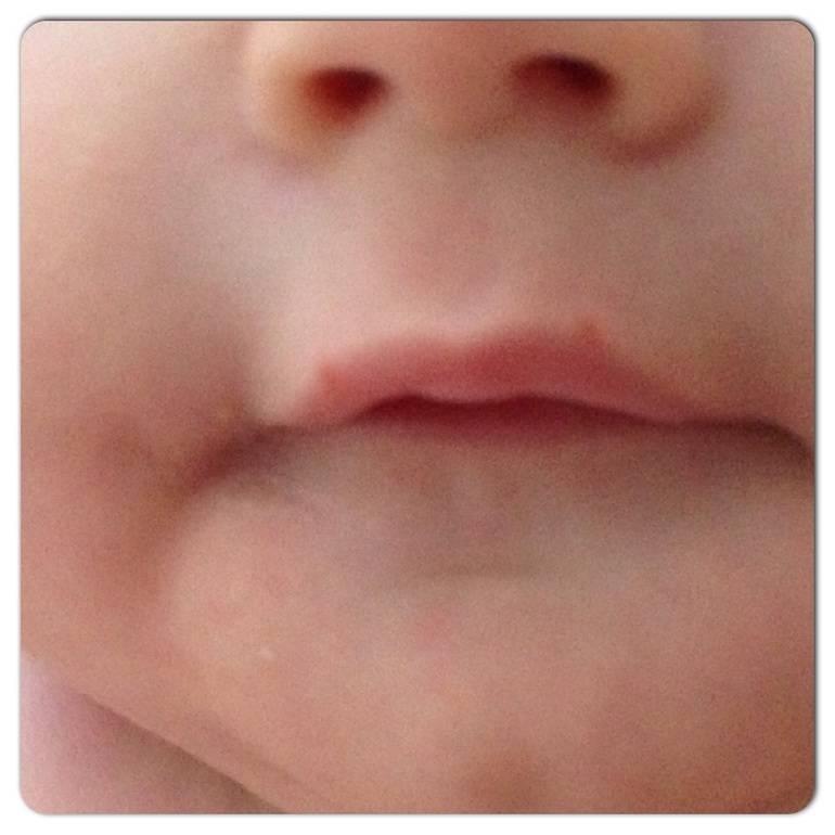 Появился герпес на губах у ребенка: эффективное лечение