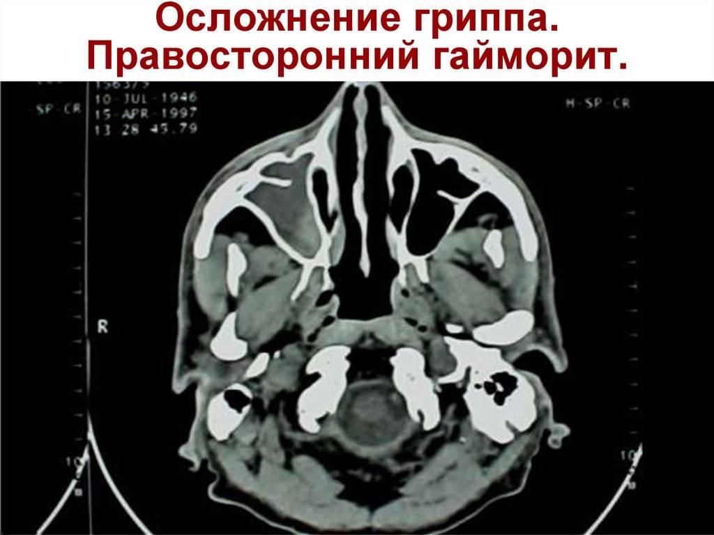 односторонний гайморит симптомы