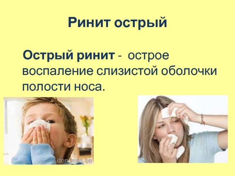 Симптомы и лечение острого ринита медикаментами и методами народной медицины