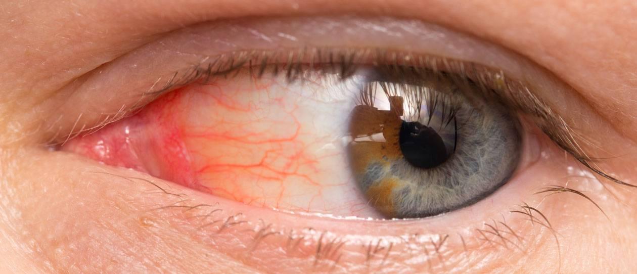 красные сосуды в глазах у ребенка