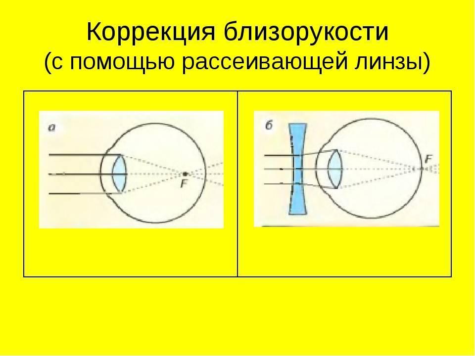 Какие бывают линзы для дальнозоркости: особенности их применения