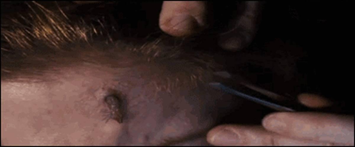 Паразитарные заболевания кожи