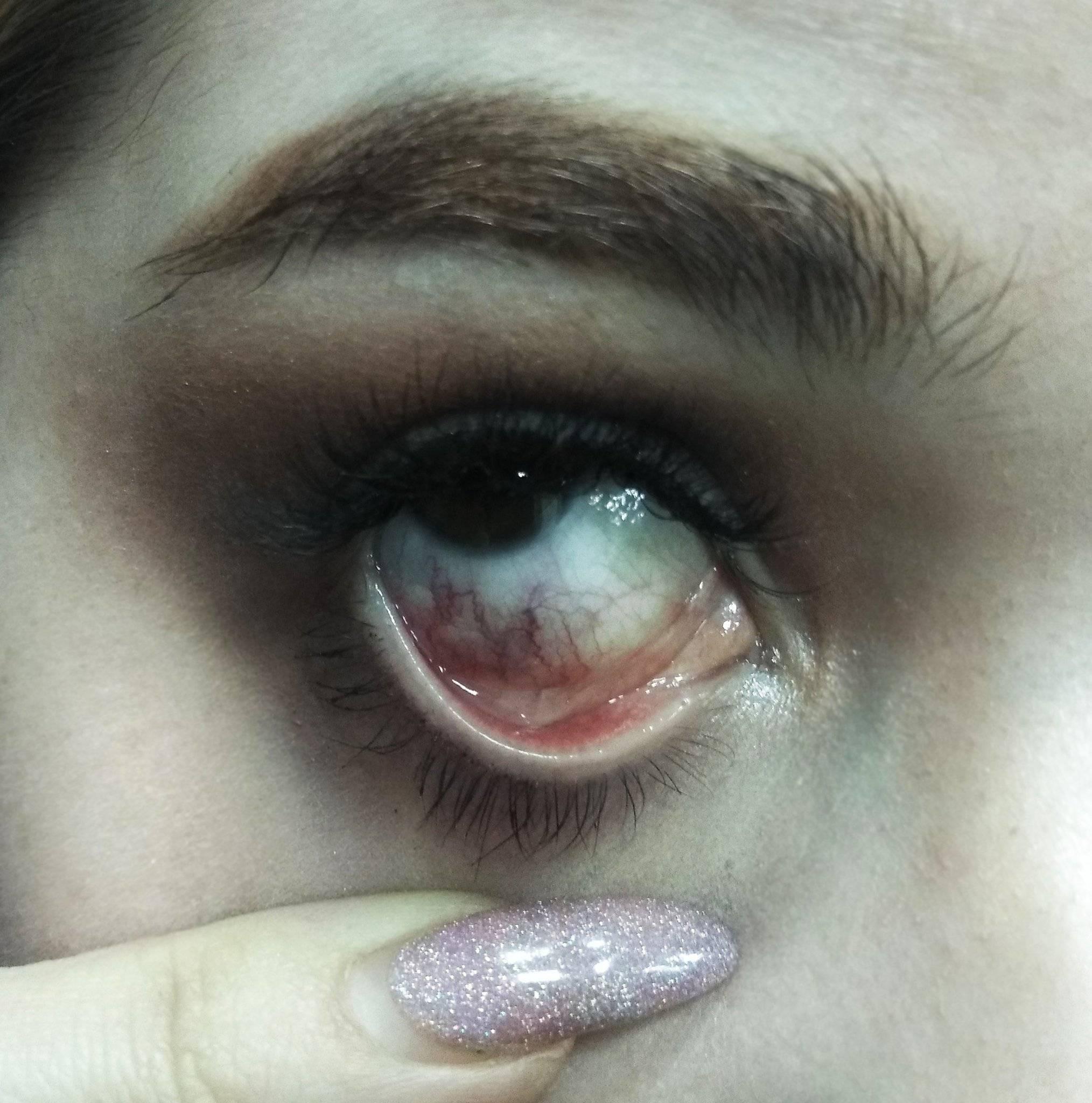 можно ли восстановить сетчатку глаза после ожога