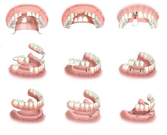 способы протезирования зубов
