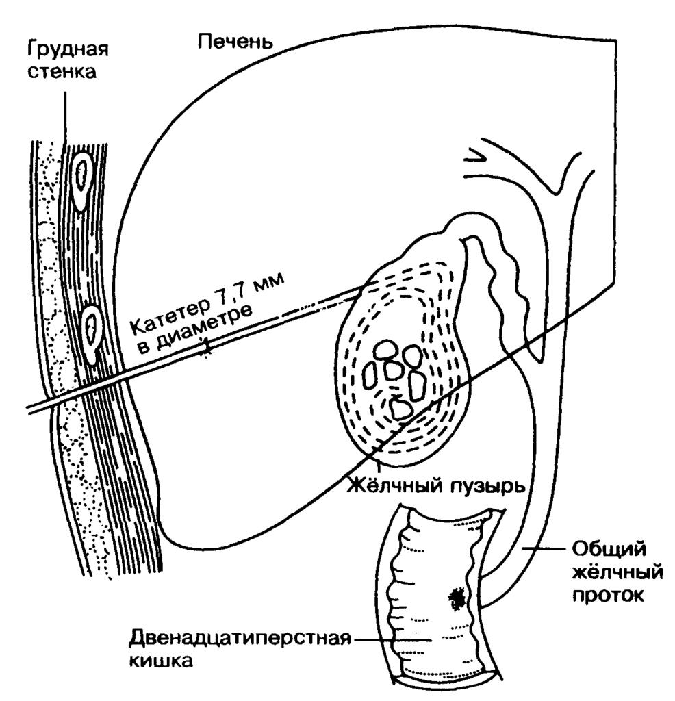 Как растворить камни в желчном пузыре