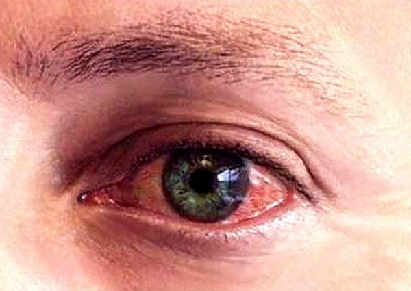 После сна красный глаз и болит