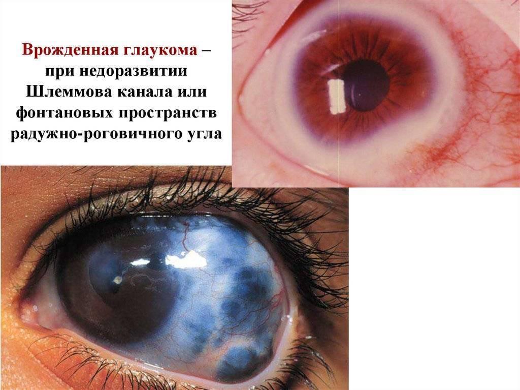 глаукома у новорожденных лечение