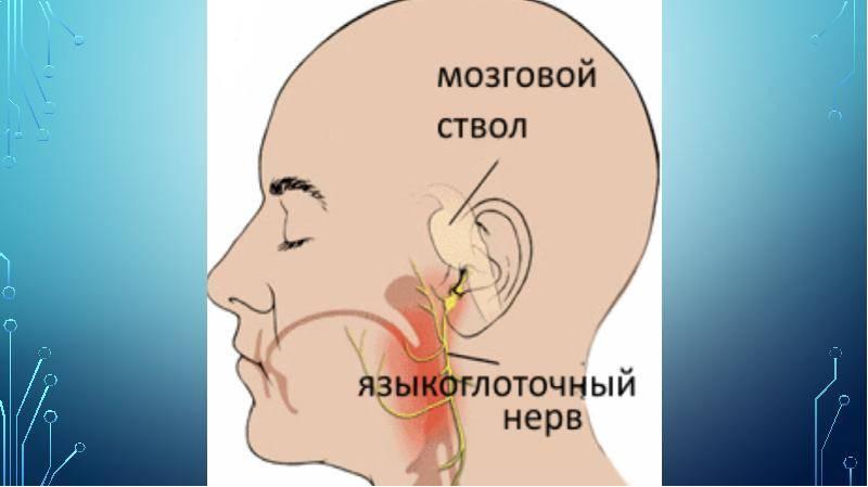 идиопатическая невралгия языкоглоточного нерва симптомы