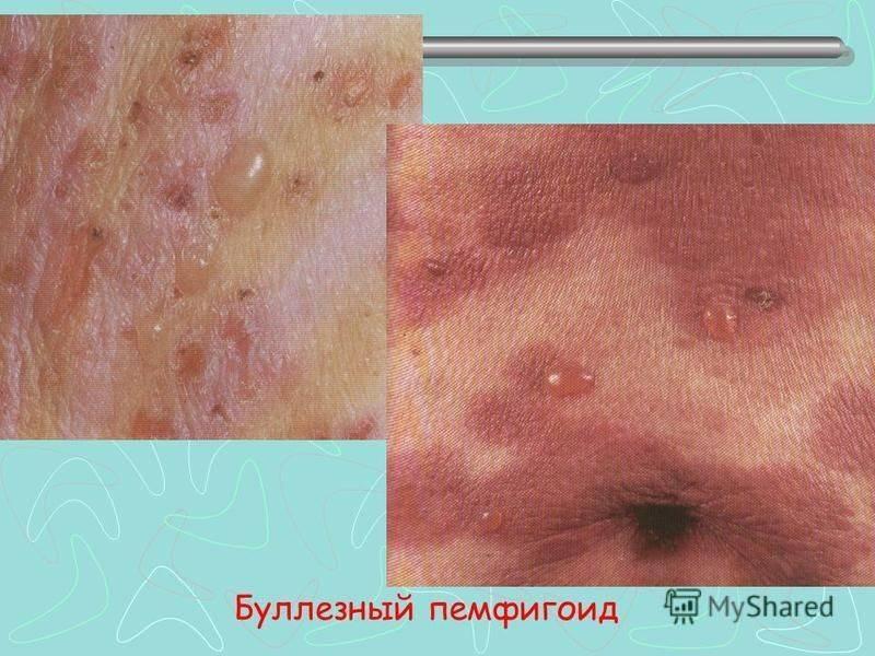 Буллезный дерматит что это такое
