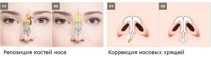Больно ли вправлять нос