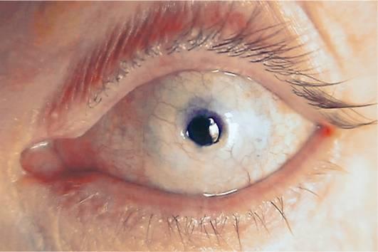 Как вылечить бельмо на глазу
