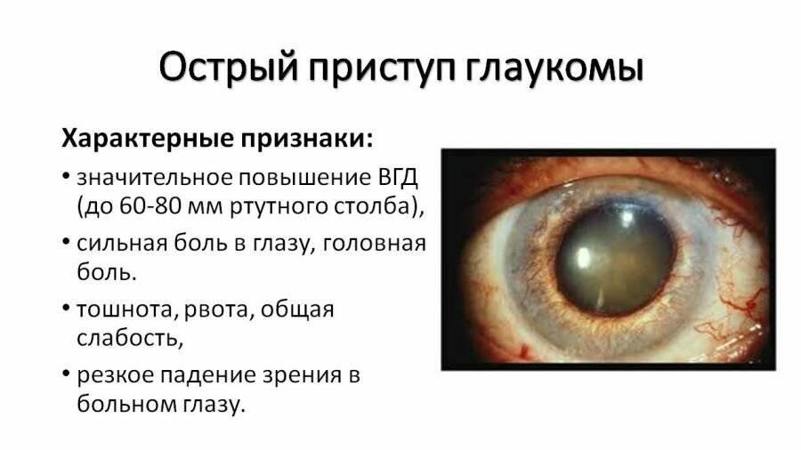 Патологии глаз: как лечить глаукому в домашних условиях?