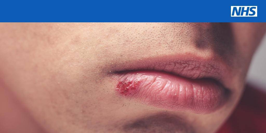 Симптомы и особенности лечения герпеса на носу