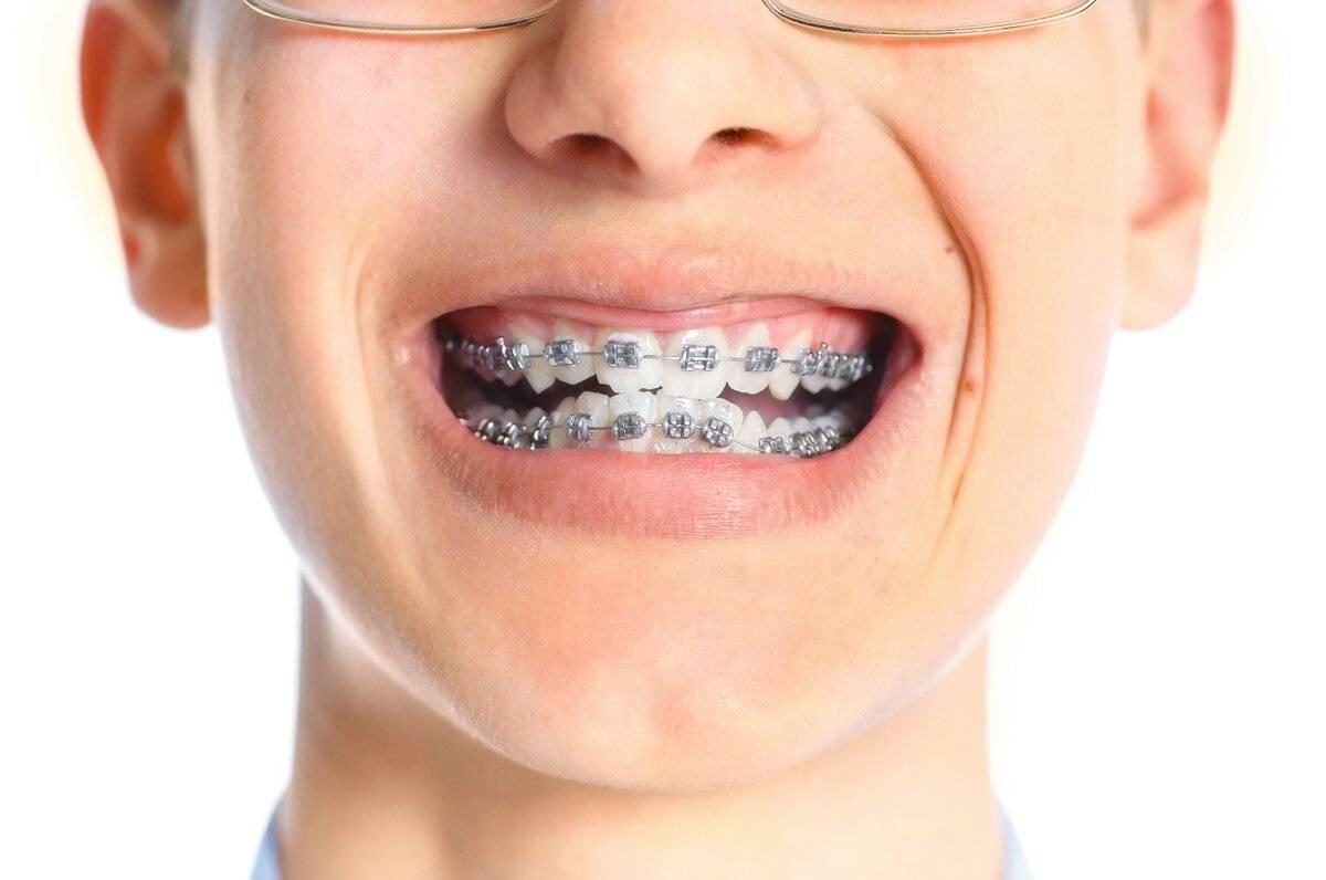 Виды и цены скоб на зубы взрослым и детям с фото