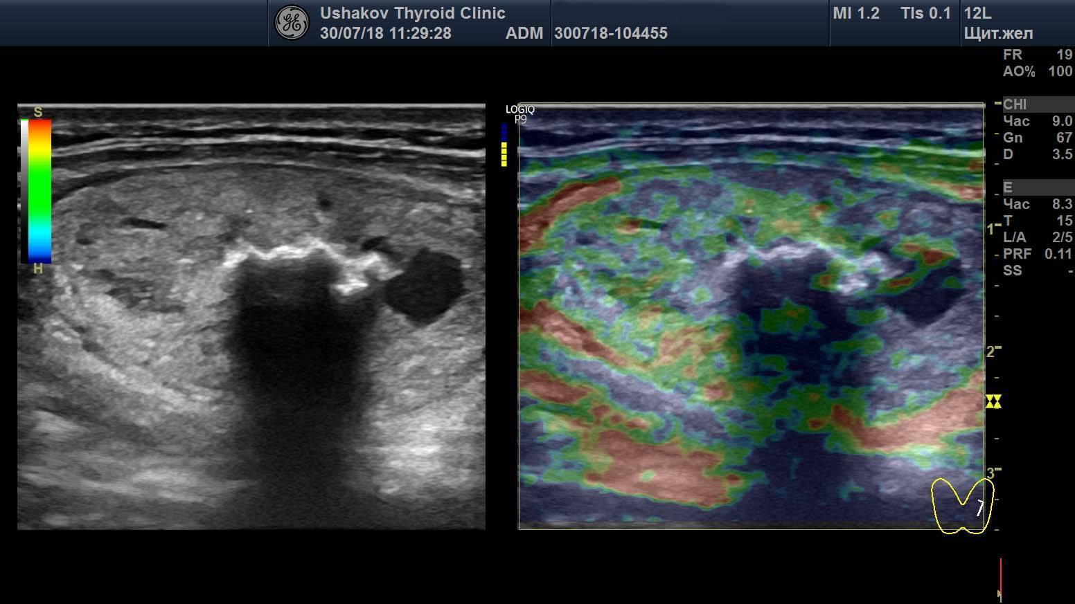 Расшифровка результатов узи щитовидной железы: норма, патология, формула расчета объема по узи