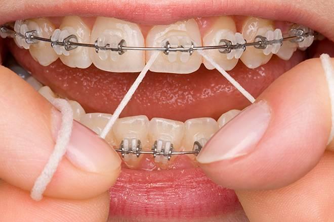 Плюсы и минусы брекетов — недостатки и преимущества зубных конструкций
