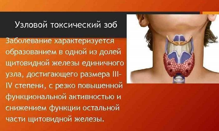 многоузловой зоб щитовидной железы симптомы