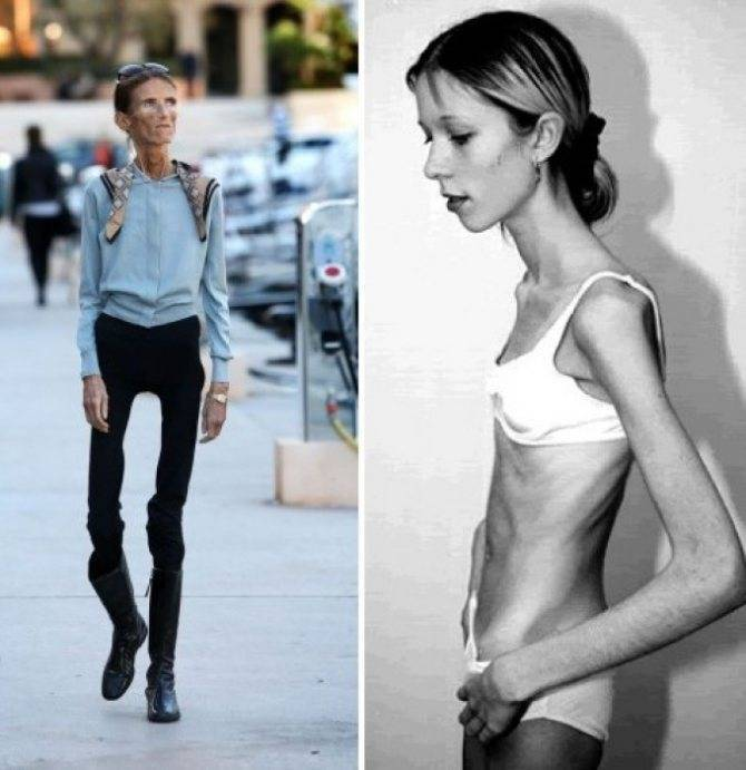 Что такое анорексия - первые признаки и симптомы