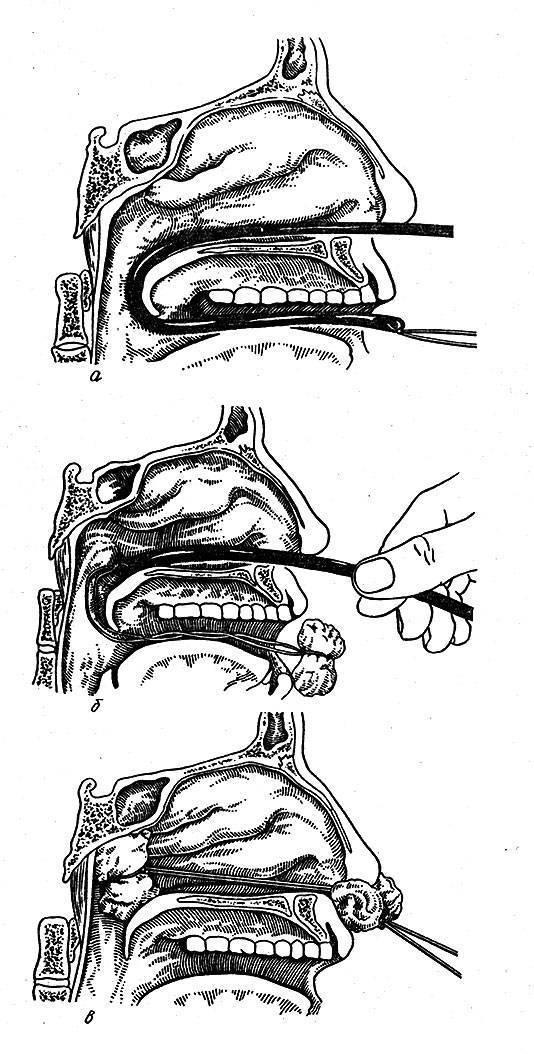 Промывание носа при гайморите фурацилином