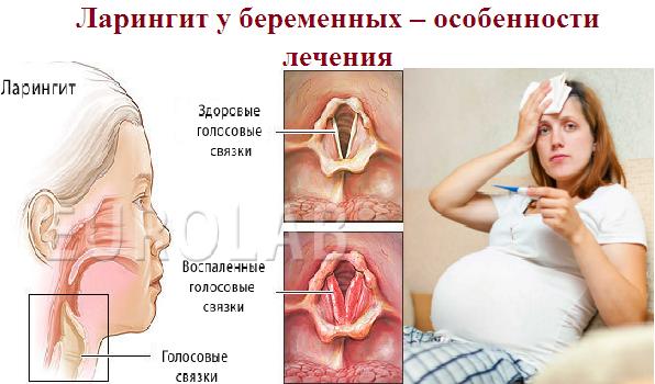 лечение ларингита у беременных
