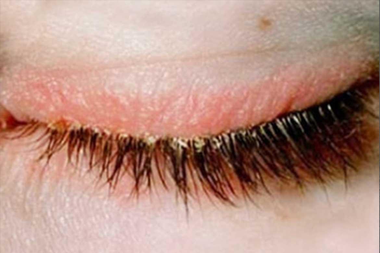 демодекоз у человека на глазах
