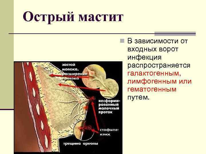 катаральный мастит