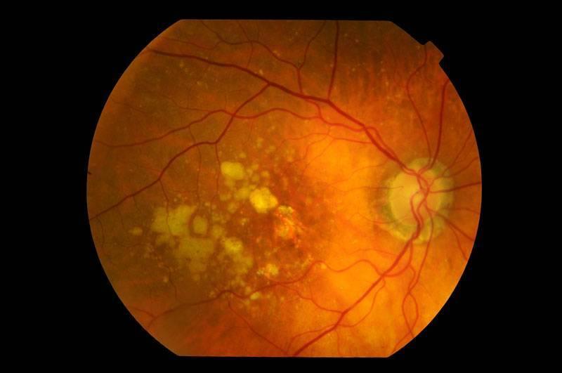 Что такое эпиретинальный фиброз глаза
