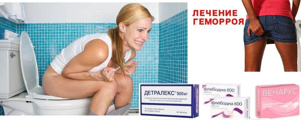 Геморрой лечение у женщин в домашних условиях лекарства. как вылечить геморрой в домашних условиях у женщин