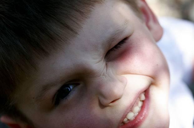 нервный тик глаза причины и лечение у ребенка