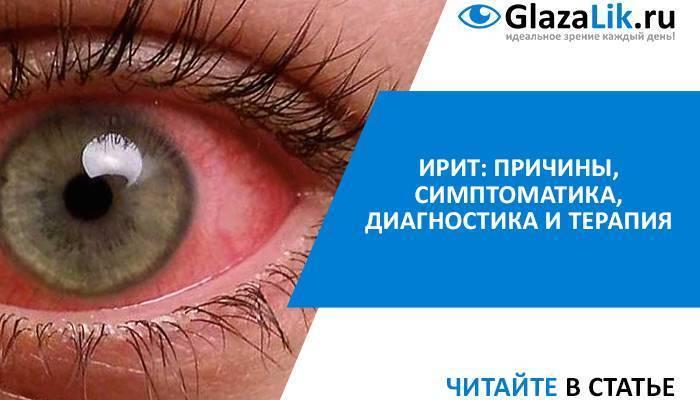 Воспаление радужной оболочки глаза: причины, симптомы, диагностика, лечение и профилактика. ирит: причины, симптоматика, диагностика и терапия