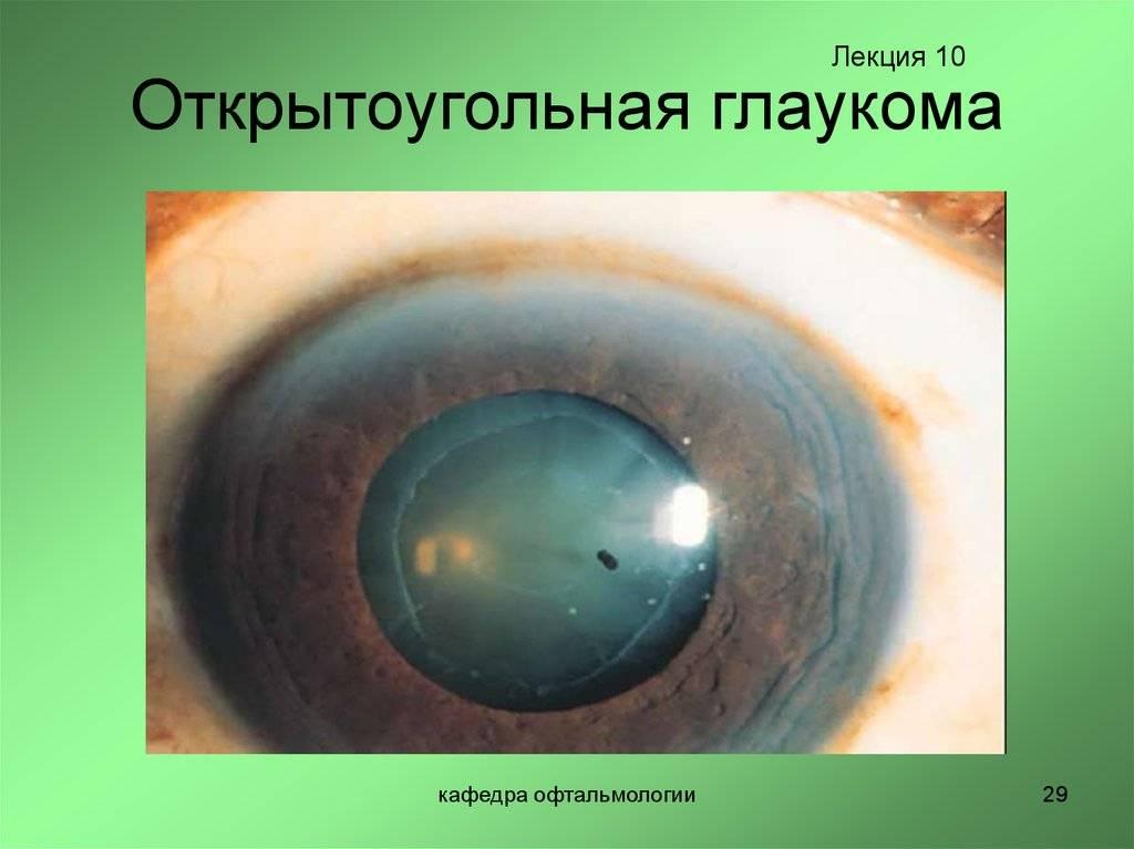 открытоугольная глаукома что это такое