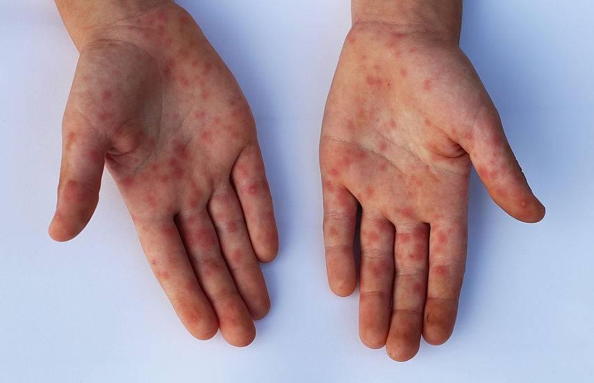 Дерматит - симптомы и лечение: первые признаки, причины и виды